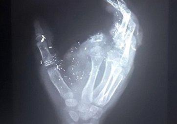 Patlayan telefon parmağını kopardı!