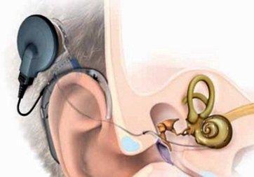 Biyonik kulak ile yeniden duymaya başladı