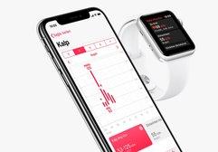 Apple Watch 3, hava durumu sorulunca çöktü