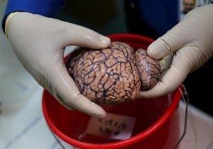 İşte bu da beyin bankası