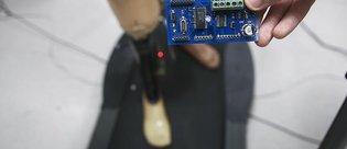 Akıllı diz protezinde Türk imzası