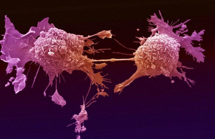 Kanseri erken teşhis için cihaz geliştirdi