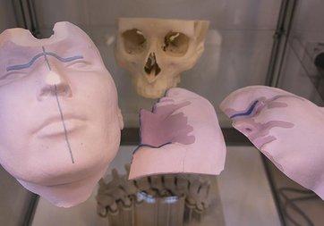 Titanyumdan 'vücut parçaları' üretiliyor