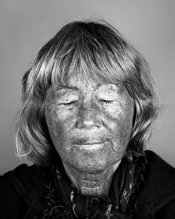 Ultraviyole ışık altında cildiniz nasıl görünüyor?